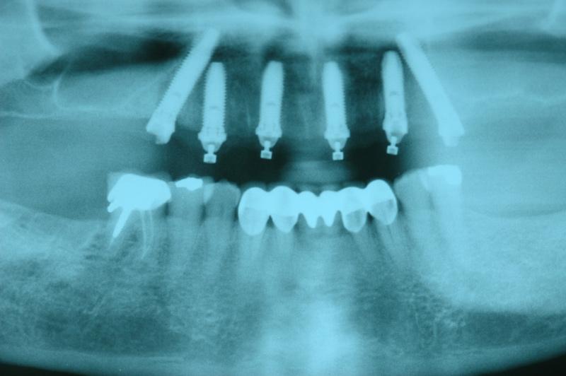 implant03-3