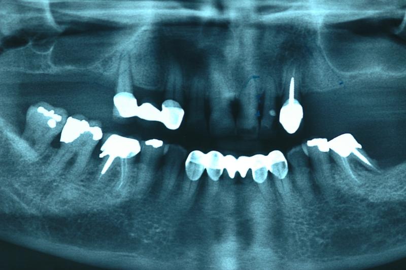 implant3-2