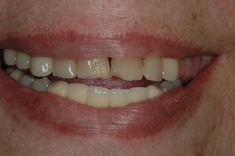 implant03-1